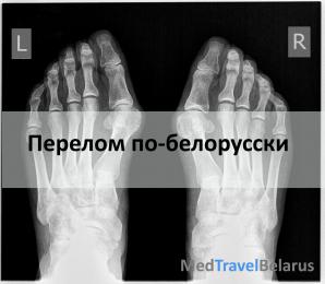 Протезы для тазобедренного сустава в беларусии.стоимость, показания информационно волновая диагностика коленный сустав