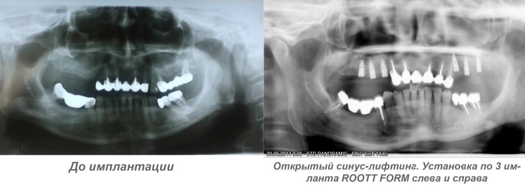 Классическая имплантация зубов, синус лифтинг примеры. Минск