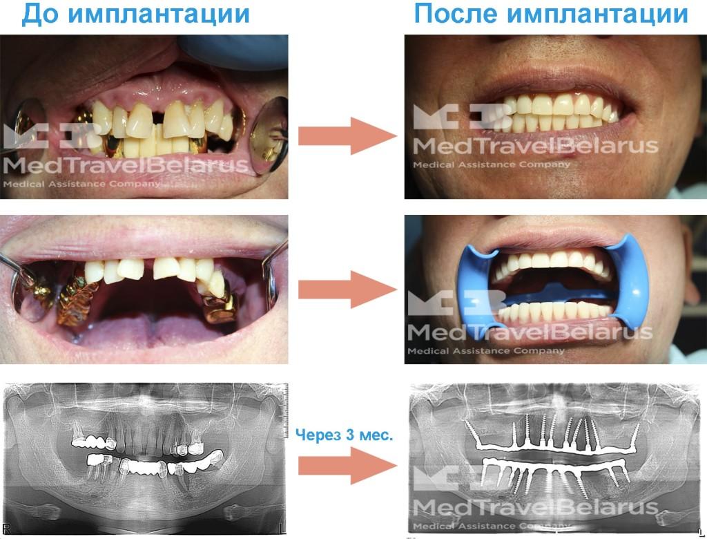 Симонов - 20 имплантов BIOMED