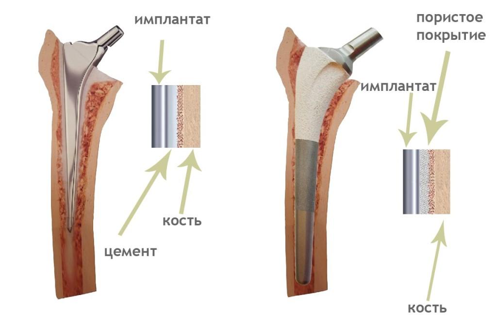Тазобедренный сустав минск стоимость операцыи коленного сустава