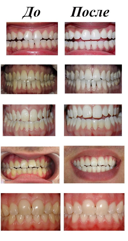 Лазерное отбеливание зубов минск