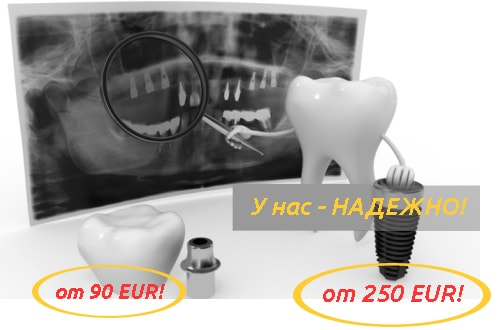 Имплантация зубов в Белоруссии примеры