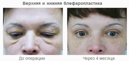 Фото до и после подтяжки век (блефаропластики)