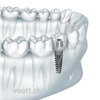 Dantu implantu kainos minske