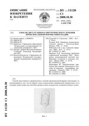 11120-sposob-dvuhetapnogo-hirurgicheskogo-lecheniya-proksimalnojj-formy-gipospadii-1_304x430