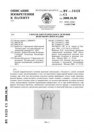 11121-sposob-hirurgicheskogo-lecheniya-venechnojj-gipospadii-1_304x430