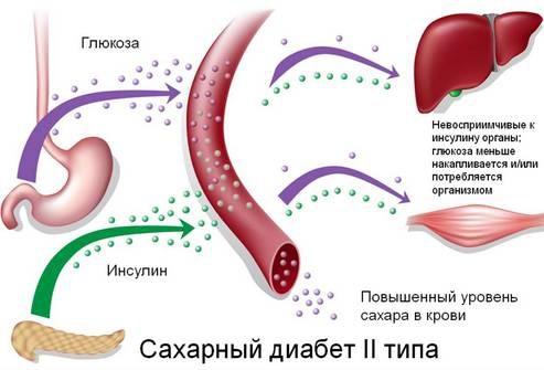 Картинки по запросу сахарный диабет