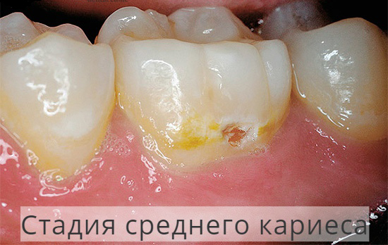 Зубы3