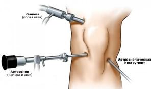 Артроскопия коленного сустава в минске отзывы упражнения для укрепления суставов