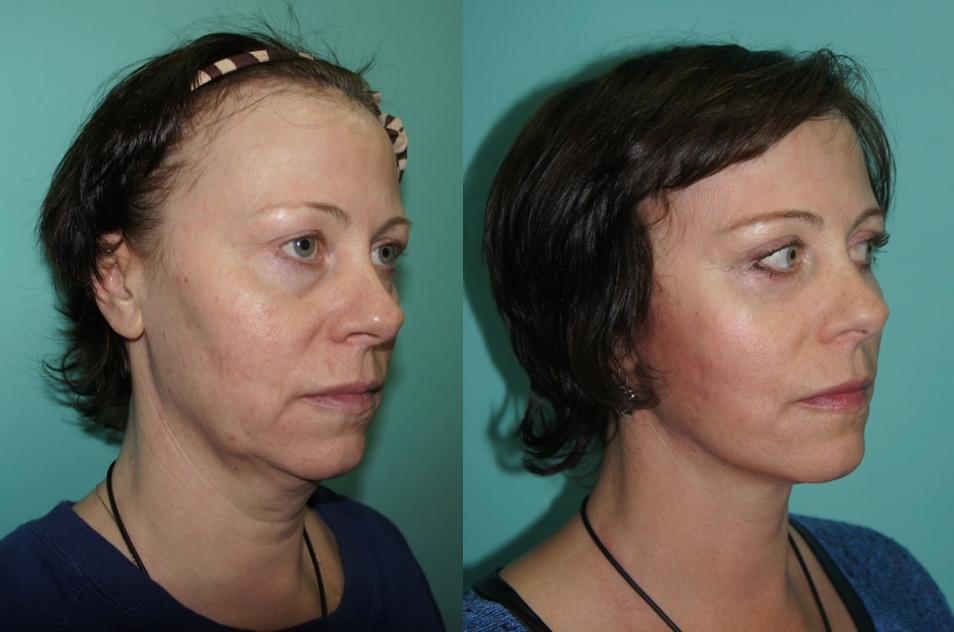 модели подтяжка лица фото до и после отзывы первого питомца лаборатории